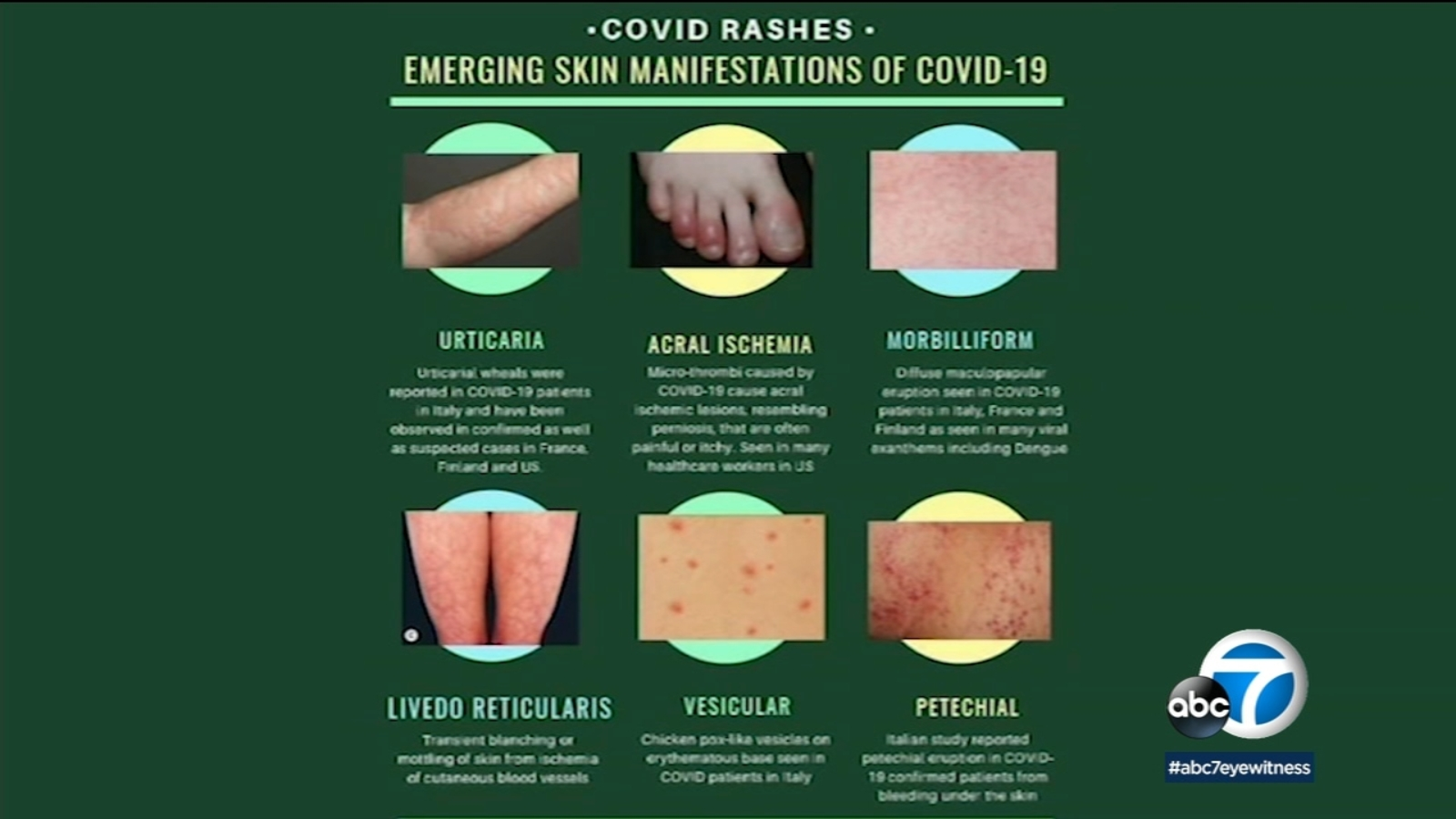 Coronavirus symptoms: Dermatology organization issues guidance on skin rashes associated with COVID-19 - WLS-TV