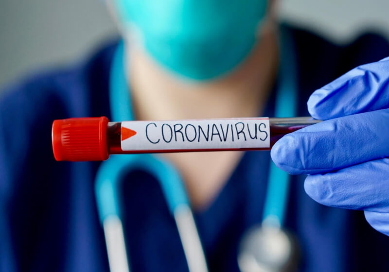Alibaba develops AI that can identify coronavirus infections with 96% accuracy - TechSpot