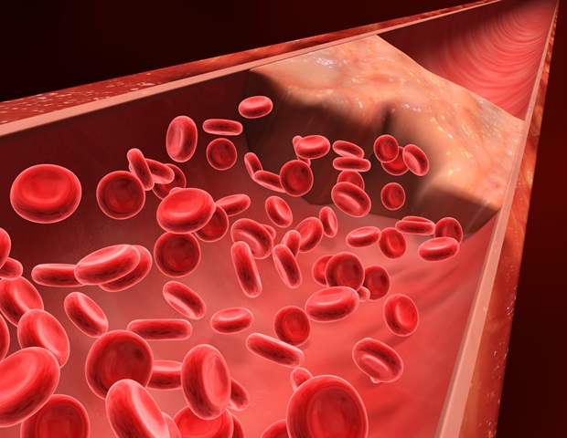 Secondary analysis reinforces safety of blood thinner - News-Medical.net
