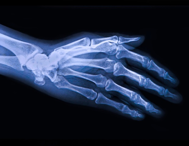 Bisphosphonates may be safe and beneficial for osteoarthritis patients - News-Medical.Net